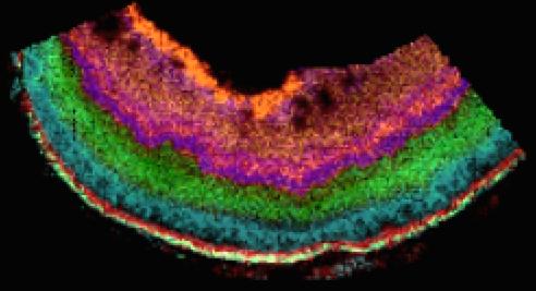 Retina.lipids